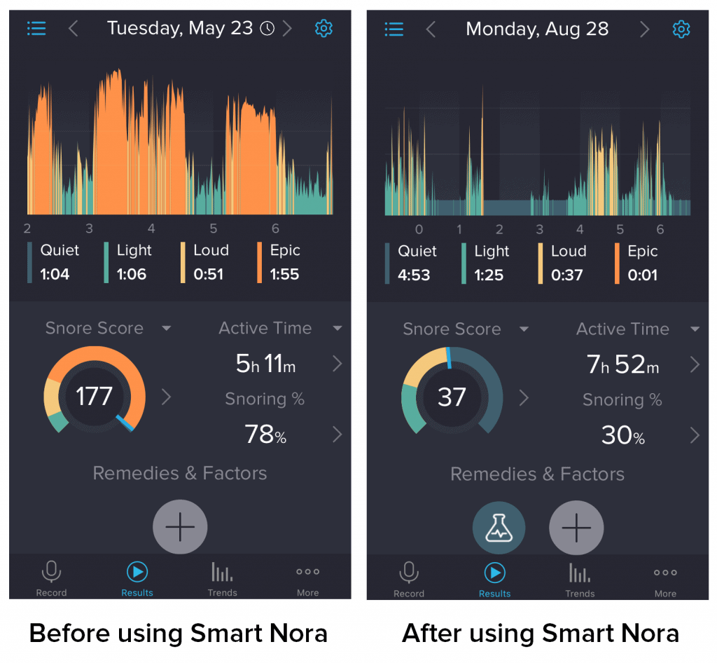 Smart Nora Review - SnoreLab Insights Product Reviews